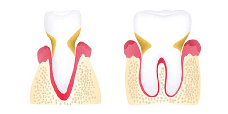 Moderate Periodontitis